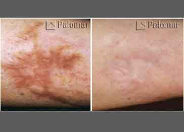 Scars arm before and after, Stretchmarks and scars Near me, Pittsburgh Pa, Cranberry TWP PA, Wexford pa, laser treatment, laser scar removal, cynosure, Palomar 1540, fractional laser, treatment, remove stretchmarks, scars, stretch marks, wrinkles, fine lines, large pores, treat sun damage, age spots, acne scars, pigmentation, sun spots, freckles, brown spots, restore volume, melasma, discolored lesions, helps skin tone, uneven skin tone, pox, divots, skin rejuvenation, no downtime, long lasting, benefits, pregnancy