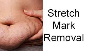 Stretch Mark Removal, VIP Membership Sign Up, Contact us, interested procedures,