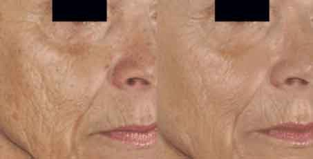 Sublative Skin Rejuvenation before and after