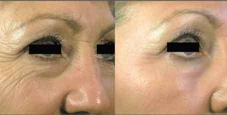 Wrinkles, reduction, Before and after, skin rejuvenation