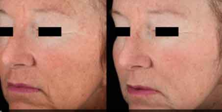 Wrinkle Before and afterskin rejuvenation