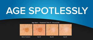 Age spot diagram, cryoclear, cryo clear, skin tags, remove, age spots, sun spots, skin concerns, hyper pigmentation, moles, warts, cholesterol deposits, safe, keratosis, how cryoclear works, dark spots, cryotherapy, pittsburgh, body beautiful, laser medi spa, before and afters, testimonials, cryoclear