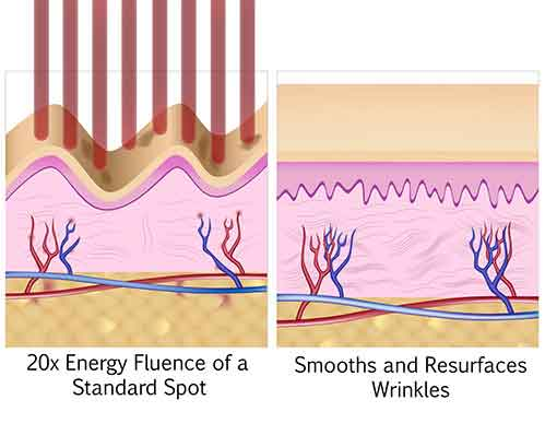 Deep wrinkle reduction, before and after, picosure, Ideal Candidate