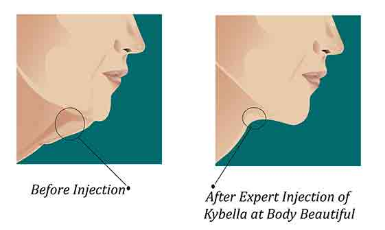 chin fat diagram general wiring diagram lymph nodes under chin diagram kybella injections how it works body beautiful laser medi spa under chin glands located chin fat diagram