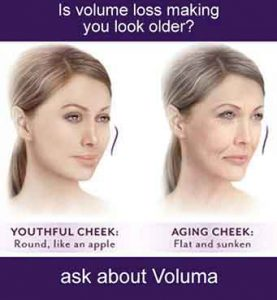 Flat cheeks and aging cheeks, facial fillers, dermal filler,injection, skin rejuvenation,hyaluronic acid,facial wrinkles,cosmetic treatment, juvederm,folds,juvederm filler,wrinkle treatment,juvederm treatment,facial filler,smile lines,injectable dermal filler, antiaging skin care treatment, skin care products,professional skin care product,voluma,reduce wrinkles,advanced skin care,wrinkle treatments,
