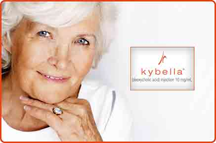 kybella injections face