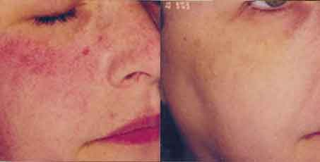 rosacea vasily cheek after Skin Rejuvenation