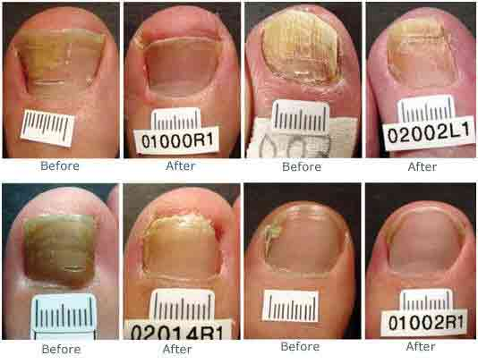 Toenail fungus before and after, Antifungal, Cranberry TWP PA, Discolored, Toenail Fungus, Before and After, Picture, Videos, Real results, Wart Beautification, Testimonials, Nail health,