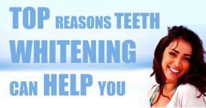 Pittsburgh teeth whitening treatment, Pittsburgh teeth whitening procedure, Pittsburgh teeth whitening service, teeth whitening treatment Pittsburgh, teeth whitening procedure Pittsburgh, teeth whitening service Pittsburgh