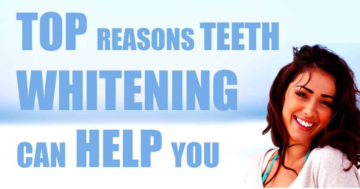 Improve your life with teeth whitening