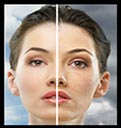 Skin Rejuvenation treatments near me, Pittsburgh Pa, Wexford Pa, Cranberry TWP PA, eMatrix, laser treatments, Med, Medi, medical, spa, skin rejuvenation, Photofacial, rejuvenation, skin, acne, acne scars, body contouring, discoloration, aging, wrinkles, pore size, Dark Spots, sun damage, age spots, sun spots, Freckles, Enlarged Pores, skin resurfacing, melasma, stretch marks,