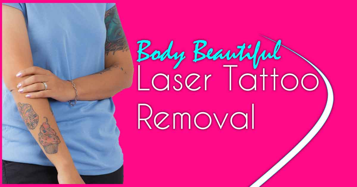 BB Laser tattoo removal
