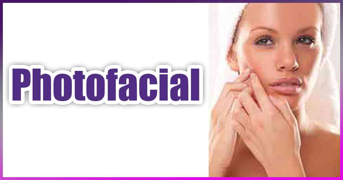 Learn about Photofacials