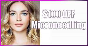 Microneedling, save, money, sale, special, deal special,