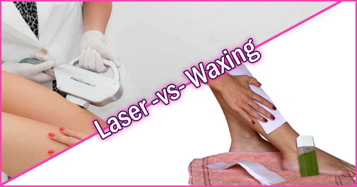 Waxing vs Laser Hair Removal