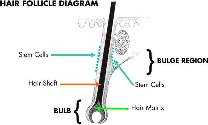Hair follicle diagram, Chromophore for Hair Reduction, hair,permanent,shave bumps,ingrown,unwanted,back,bikini,legs,arms,armpits,fingers,lip,toes,wax,waxing,shave,pluck,tweeze,bleach,razor rash,scarring,medical spa,fast,hair removal systems,dark,hair color,safe,coarse hair,FDA,hair follicle,diode laser,IPL,hair loss,body,melanin,treatments