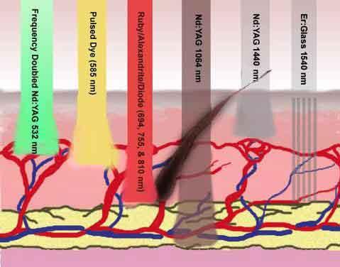 Laser depth diagram, medical spa,fast,hair removal systems,dark,hair color,safe,coarse hair,FDA,hair follicle,diode laser,IPL,hair loss,body,melanin,