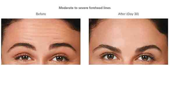 Cosmetic eyebrows fine arts of beauty, before and after