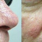 Spider Veins, laser vein treatments, veins pittsburgh, Varicose veins, varicose vein treatments,
