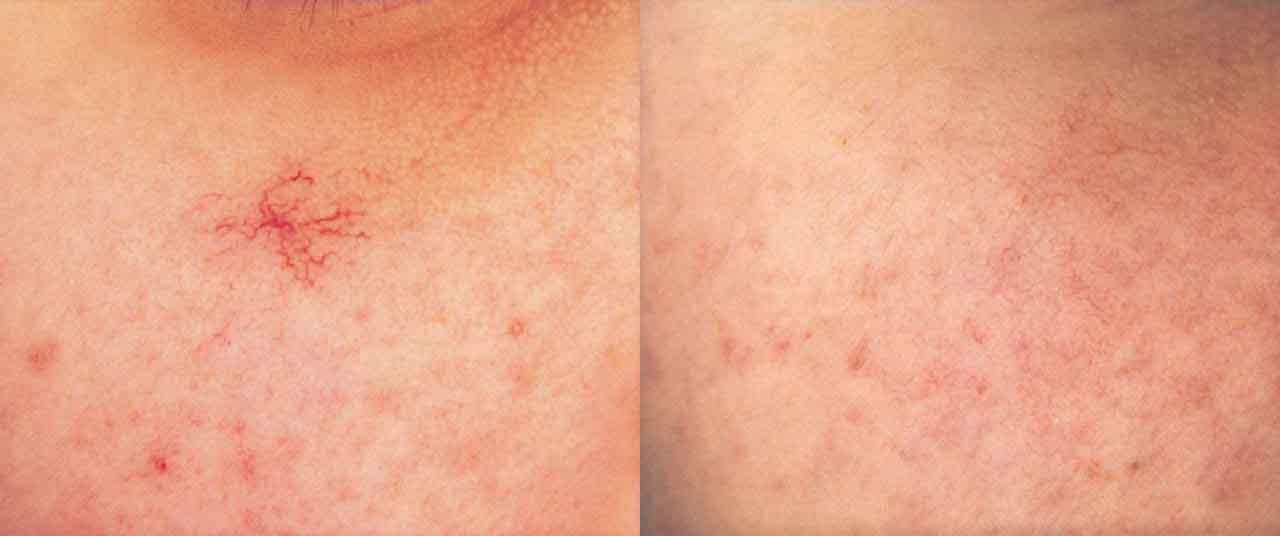 Spider Veins, laser vein treatments, veins pittsburgh, Varicose veins, varicose vein treatments,