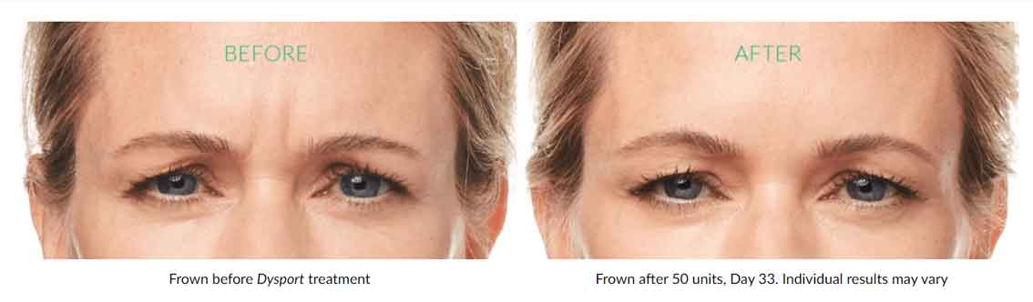 Dysport, Botox alternative near me, cosmetic injectables near me, fillers, Restylane Silk, Lyft, improve your appearance, lines, wrinkles, natural reversal of ageing, relaxes muscles, improve facial expressions, botulinum toxin A, wrinkle reduction, Dysport cost, Leading Injectable, Youthful Appearance, injections, frown lines, crow's feet, Aesthetic Facial Treatments, Dysport, significantly improves appearance