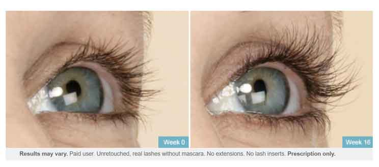 latisse before and after allergan cosmetics