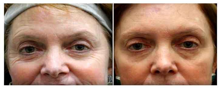 Sun spots, Age Spot, Anginoma, Skin Tightening, wrinkles pittsburgh, Photo-Facial, photofacial, Acne, photodynamic acne therapy,