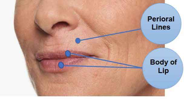 Restylane Kysse, lip area, perioral lines, injecables