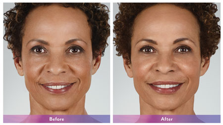 Juvederm and other Fillers treatment near me, Pittsburgh Pa, Wexford Pa, and Cranberry TWP Pa, Aesthetic services, improve health, appearance, collagen, droopiness, wrinkles, preventing sagging, juvederm injectable gel, facial wrinkle, skin, rejuvenated smooth volume, youth appearance, filler, wrinkles, frown lines, age damage, sun damage, vibrant look, boost self-confidence,