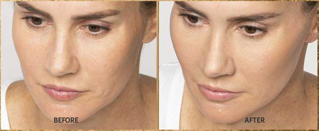 Restylane Lyft Price Pittsburgh Pa, Natural looking Filler Pittsburgh Pa, Cosmetic injections for Wrinkles, Restylane Galderma Fillers in Pittsburgh Pa,Correct facial wrinkles and nasolabial folds, Top Pittsburgh Pa Injector, Pittsburgh best Juvederm injector near me, 5 star cosmetic injectors,Restylane Lyft Pricing Pittsburgh Pa, Cosmetic cheek injections Pittsburgh Pa
